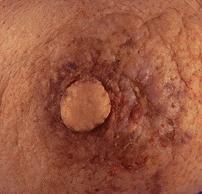 Has Symptom of breast disease magnificent