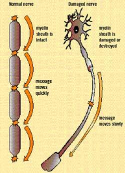 ms-nerve-damage